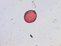 Pollen from the plant Genus Anchusa.