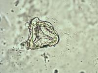 Pollen from the plant Genus Anogramma.