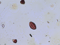 Pollen from the plant Genus Arabidopsis.