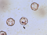 Pollen from the plant Genus Alisma.