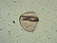 Pollen from the plant Genus Adiantum.