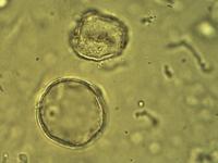 Pollen from the plant Genus Anthoxanthum.