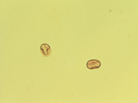Pollen from the plant Genus Androsace.