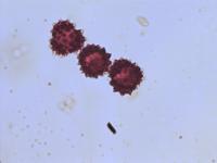 Pollen from the plant Genus Achillea.