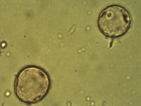Pollen from the plant Genus Agrostis.