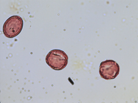 Pollen from the plant Genus Aquilegia.