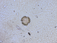 Pollen from the plant Genus Antennaria.