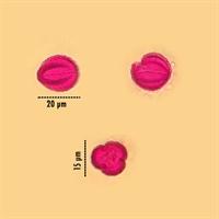 Unidentified pollen grain #17